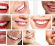 Cara Gigi Putih