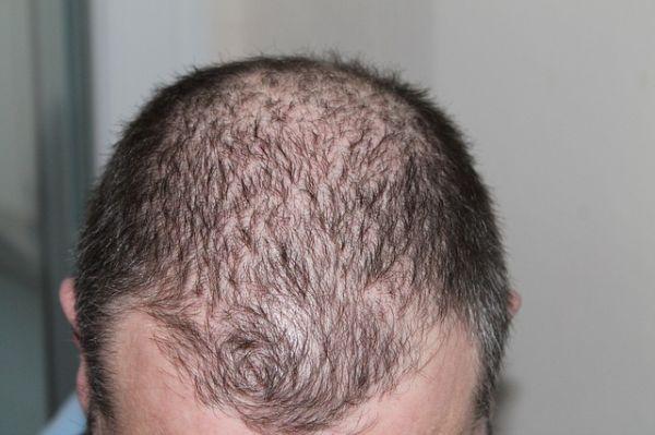 Cara Alami Merawat Mengatasi Rambut Rontok Karena Ketombe